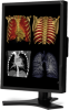 "21"" Color 3-Megapixel Medical Diagnostic Monitor -- MD213MC -- View Larger Image"