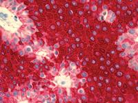 Ultraview Universal Alkaline Phosphatase Red Detection Kit