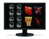 30-Inch MultiSync® Series Diagnostic Flat-Panel Monitor -- MD304MC