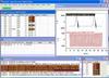 Lab Software -- IMPAX-SD