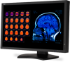 """30"""" Color 4-Megapixel Widescreen Medical Diagnostic Monitor -- MD301C4 -- View Larger Image"""