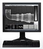 INDUSTREX Flex Blue Digital Imaging Plates -- GP / HR / XL