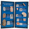 The Consequences of HIV/AIDS - 3D Display -- W43090